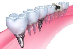 インプラント治療で、天然の歯に最も近い見た目と機能を。